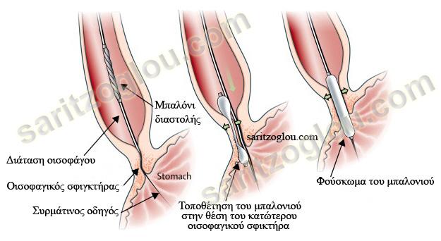 esophageal-achalasia6