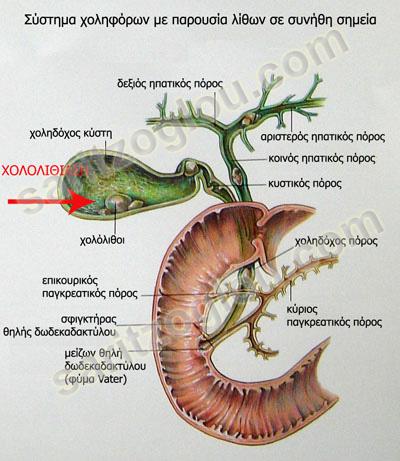 chololithiasi2