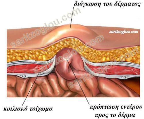 koilestoixomatos1
