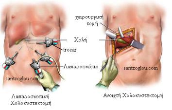 lapcholecystectomy