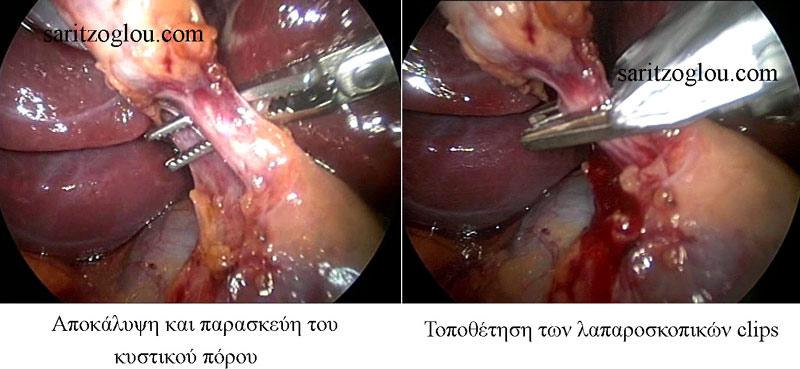 lapcholecystectomy3
