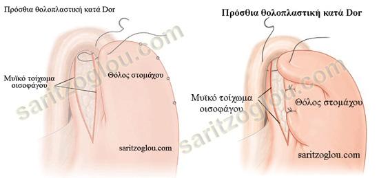 μυοτομή Heller