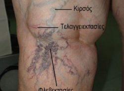 Εικόνες κιρσοί κάτω άκρων – ευρυαγγείες – τελαγγειεκτασίες – φλεβεκτασίες – μείζονα σαφηνής φλέβα Κιρσοί , φλεβεκτασίες και τελαγγειεκτασίες στο κάτω άκρο του ίδιου ασθενούς ως αποτέλεσμα χρόνιων κιρσών των κάτω άκρων.