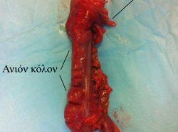 Χειρουργικό παρασκεύασμα δεξιάς κολεκτομής, για καρκίνο παχέος εντέρου. Αναγνωρίζεται ο τελικός ειλεός, το τυφλό, το ανιόν κόλον και τμήμα του εγκαρσίου κόλου.