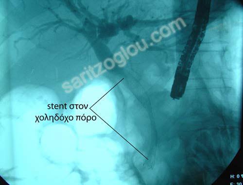 χολαγγειίτιδα