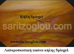 photo-Spiegel1