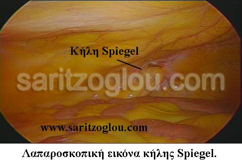 κήλη Spiegel